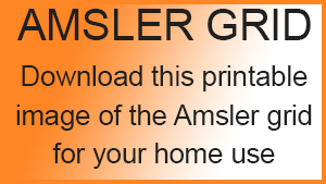 picture about Printable Amsler Grid referred to as amsler-grid - ScherWard